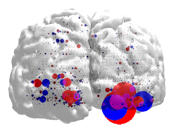 Brain Data Visualizaton